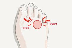 その足の痛みやシビれ、モートン病が原因かも?! 〜 原因と対策 〜