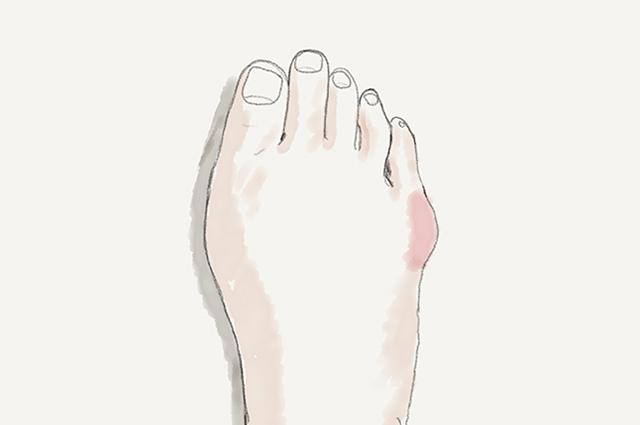 【コラム】足の小指は健康のバロメーター! 〜 内反小趾がもたらす悪影響とは? 〜