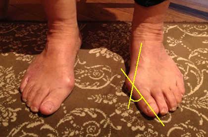 外反母趾の原因は靴にあり?!
